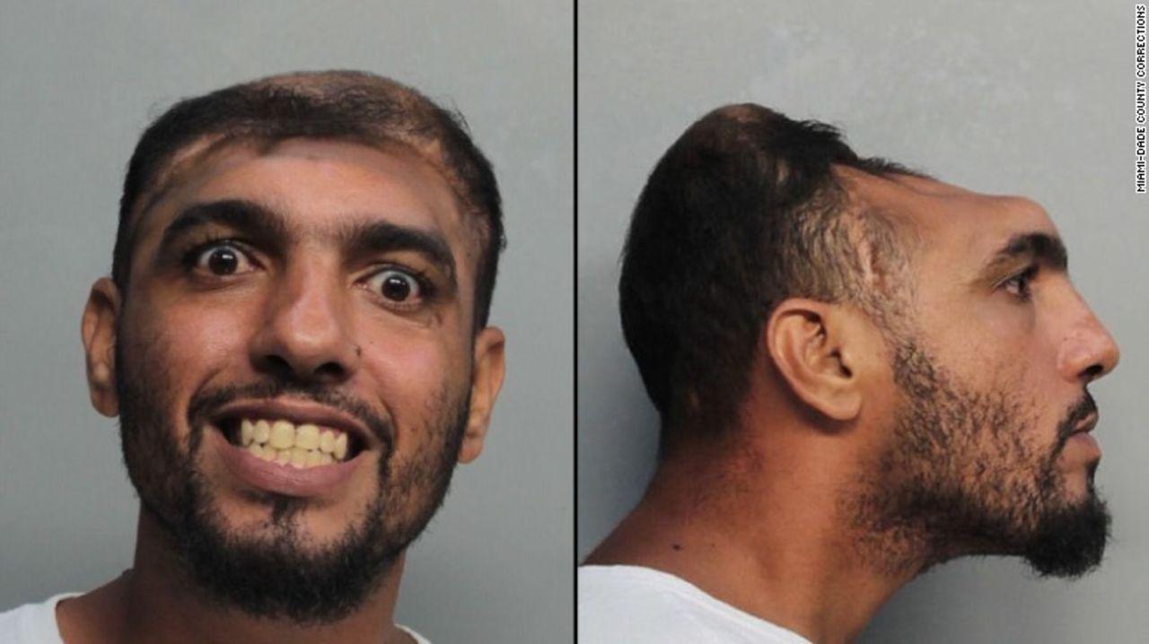 ВМайами был схвачен «человек споловиной головы» Карлос Родригес