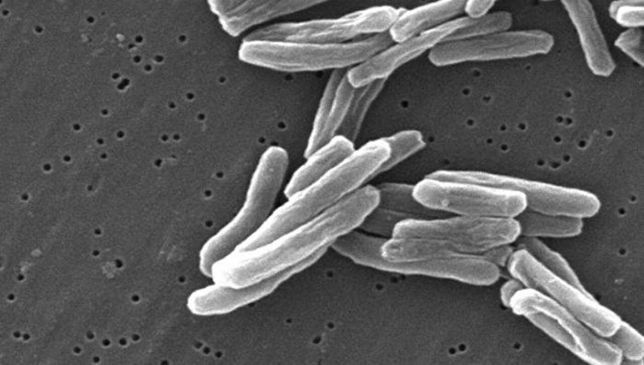 Ученые испытали первую за100 лет вакцину оттуберкулеза
