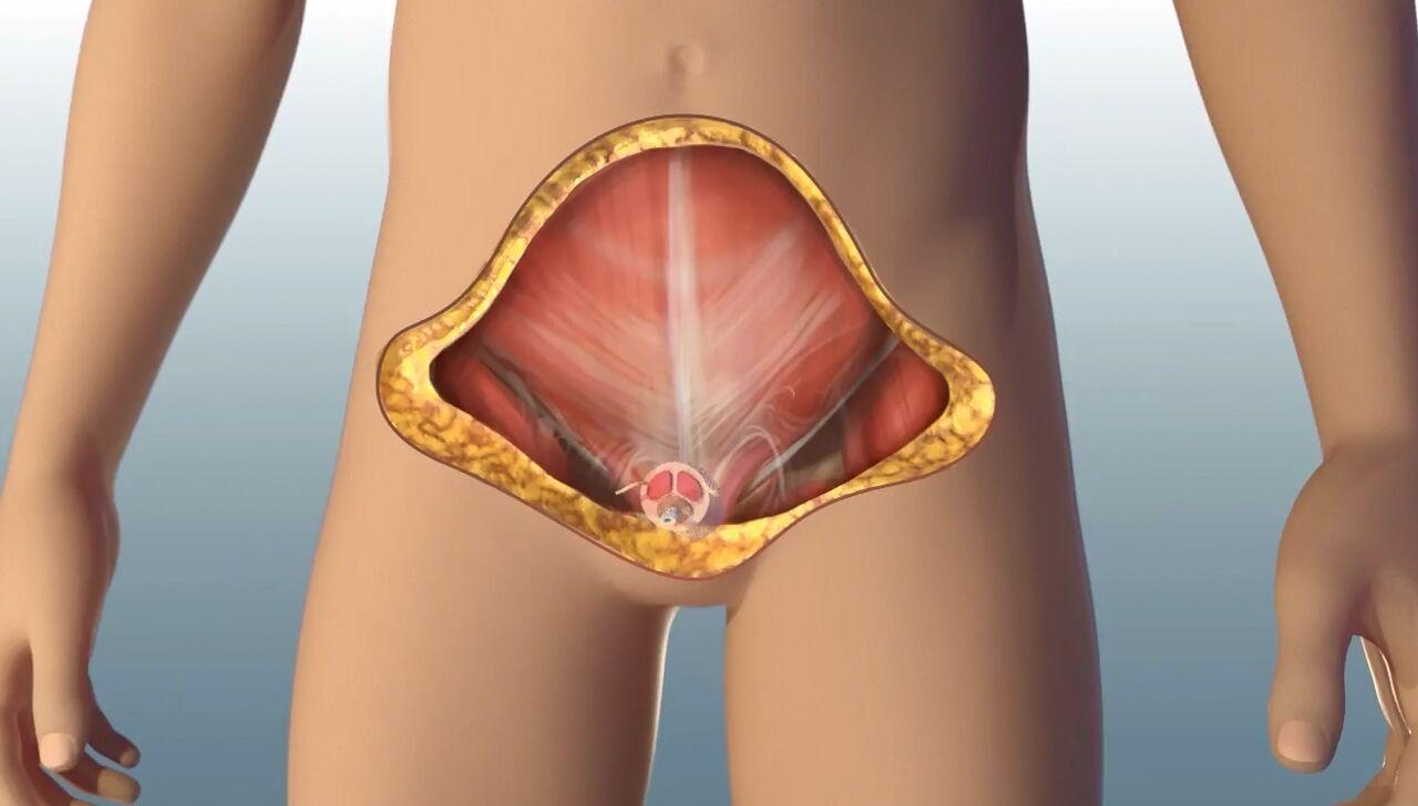 ВСША впервый раз  провели полную трансплантацию пениса