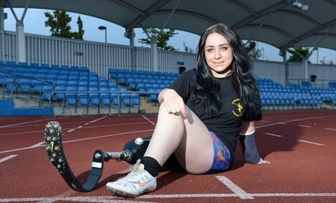 Девушке ампутировали ноги 12 фотография