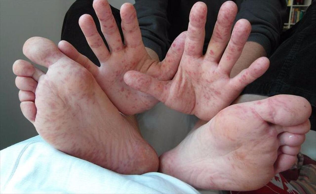 Энтеровирус Коксаки диагностировали более чем у 50 детей в Сургуте. Об этом сообщает