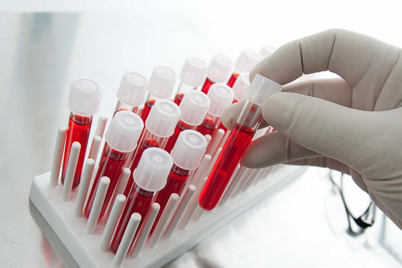 Очередь доноров расписана натри недели вперед— Кемеровский Центр крови