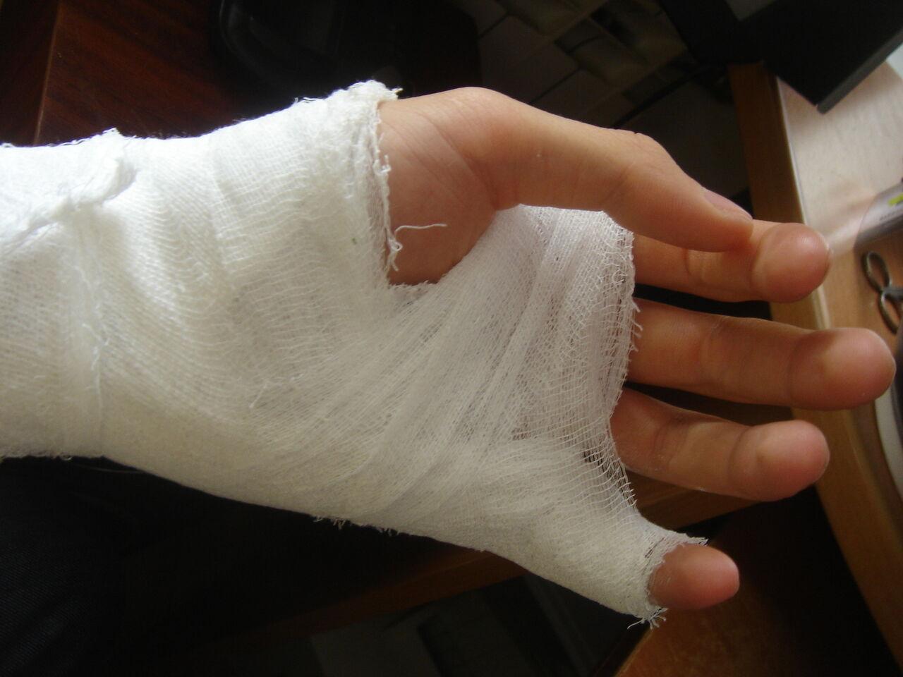 Кузбасс: школьнику заплатят 50 000 руб. засломанный палец