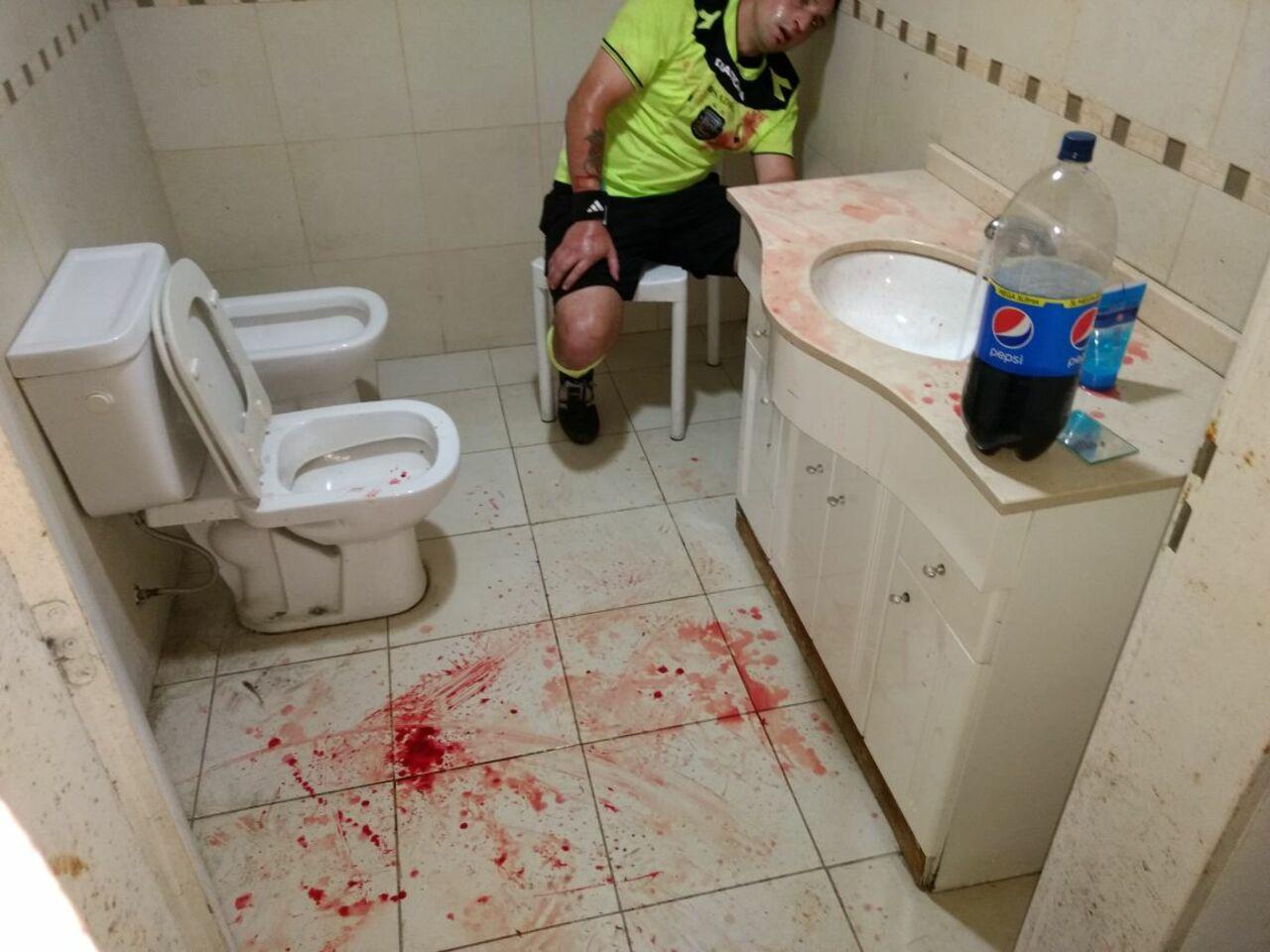 Фанаты безжалостно избили ипроломили голову арбитру вовремя матча