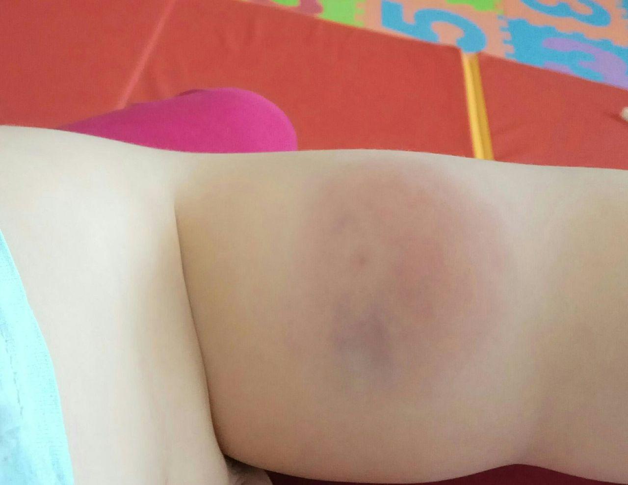 После прививки в частном детском медцентре у маленького кемеровчанина начался отек ноги / VSE42.RU Новости