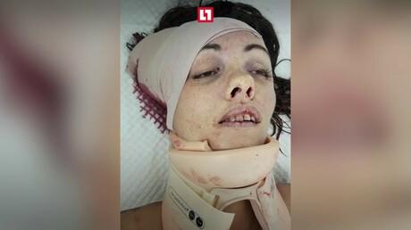 Голая русская туристка сбила головой дорожный знак и скончалась