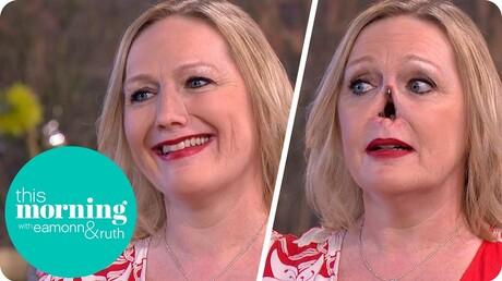 Англичанка «отстегнула» нос впрямом эфире телешоу
