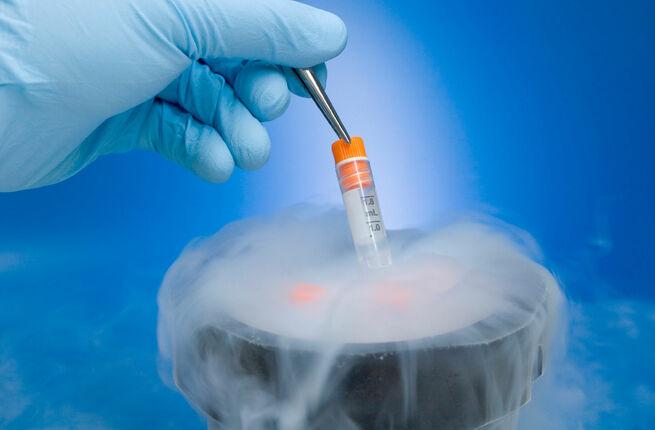 криоконсервация спермы в барнауле-дм1