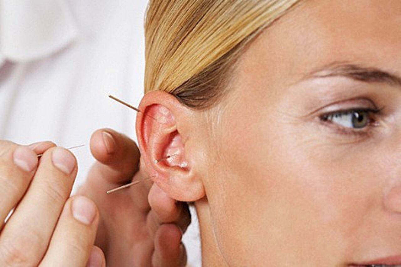 Иглоукалывание В Уши Для Похудения Отзывы. Иглоукалывание для похудения